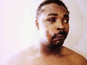 Rodney King (1965-2012) a bántalmazás után 1991-ben