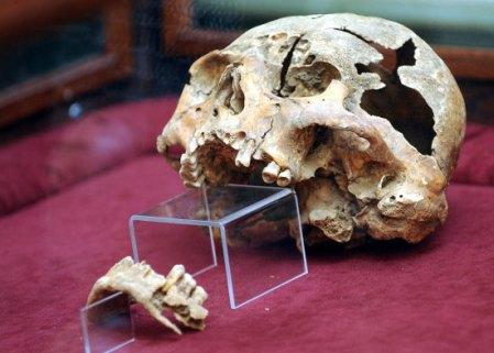 Dobó István (1502-1572), Eger várkapitányának koponyája