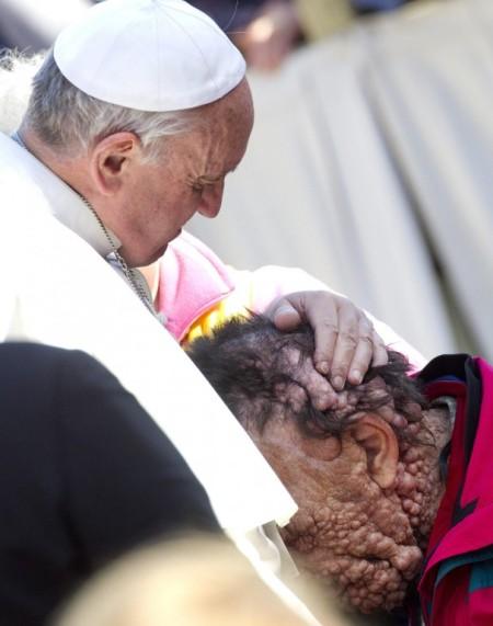 Ferenc pápa egy súlyos bőrbeteg férfival a vatikáni Szent Péter-téren 2013. november 6-án
