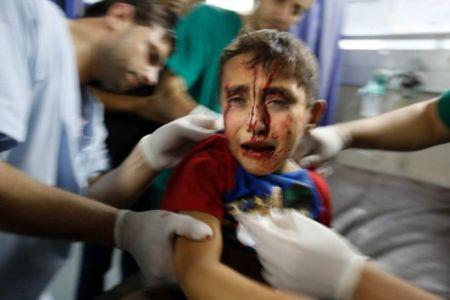 Az izraeli-palesztin konfliktusban megsérült kisgyermeket látnak el Gázában 2014. július 17-én