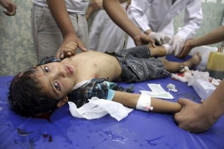 Palesztin kisfiút látnak el 2014. július 22-én